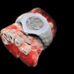 Radiografia a cores